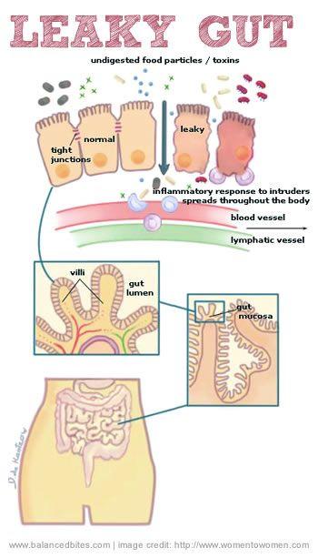 pierde greutatea leaky gut