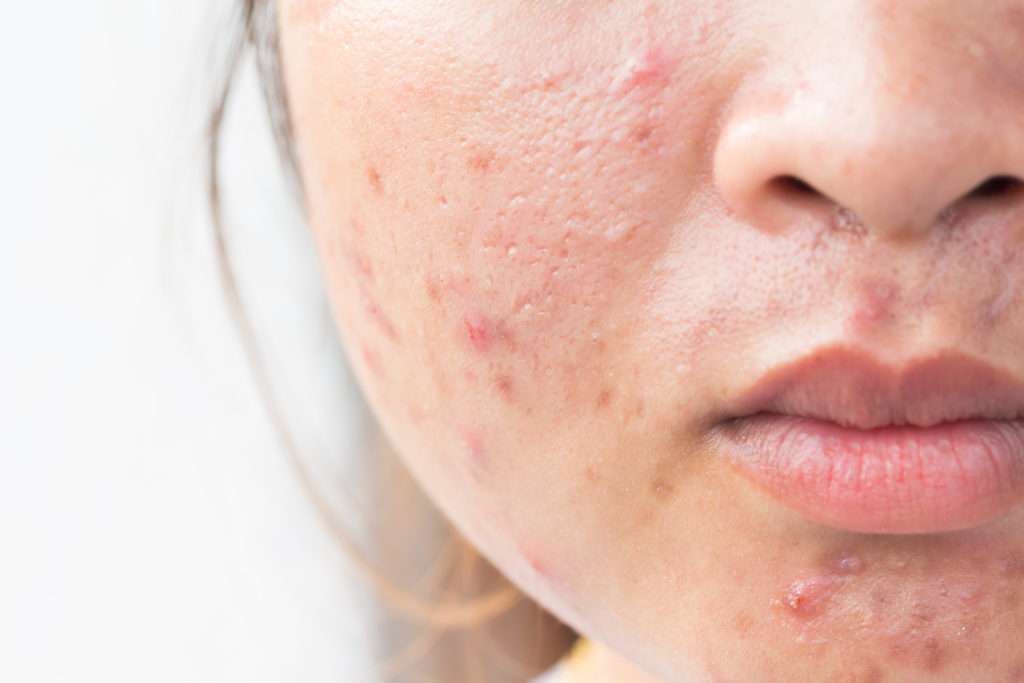 acne after birth control